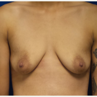 18-24 year old woman treated with Breast Augmentation before 3658971