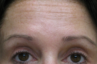Dysport for forehead lines after 1307478