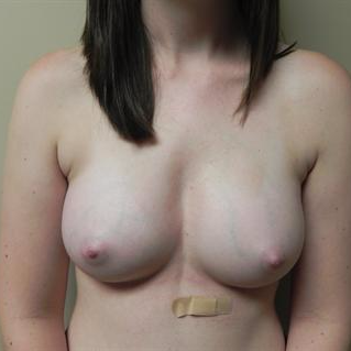 18-24 year old woman treated with Breast Augmentation after 3378429