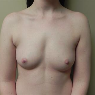 18-24 year old woman treated with Breast Augmentation before 3378429