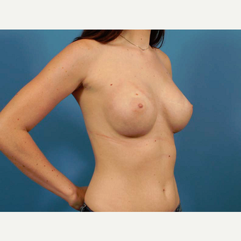 25-34 year old woman treated with Breast Implants after 3787032