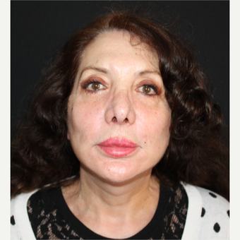 65-74 year old woman treated with Facelift after 3498755