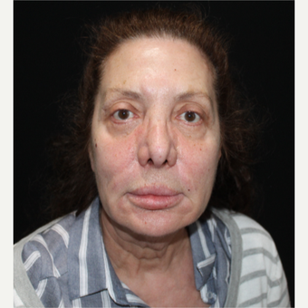 65-74 year old woman treated with Facelift before 3498755