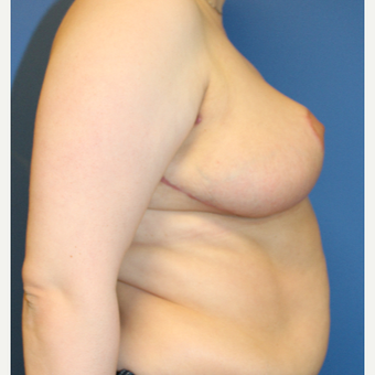 35-44 year old woman treated with Breast Reduction after 3550354