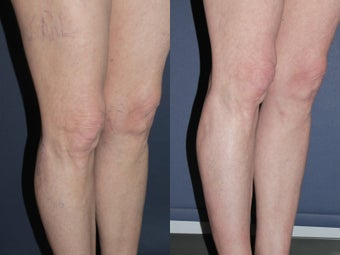 Sclerotherapy Before and After before 1033922
