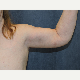 55-64 year old woman treated with Arm Lift after 3281235
