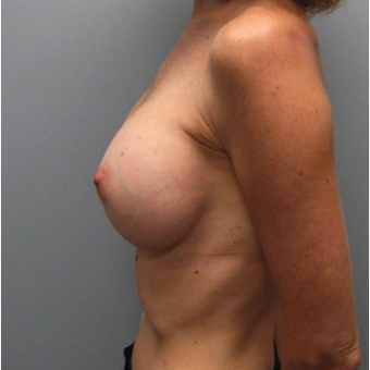 Breast Reconstruction after 3468173