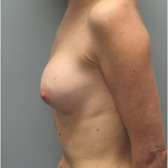 Breast Reconstruction before 3468173