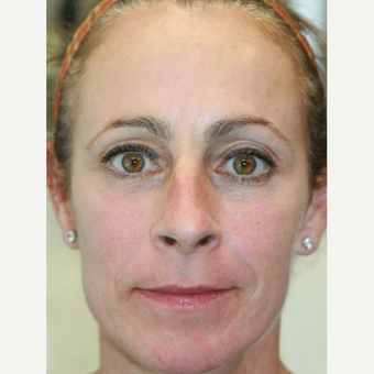 51 year old woman treated with Juvederm Voluma, Restylane, and Botox  (Liquid Facelift) after 3748040