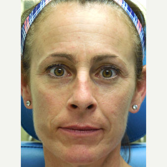 51 year old woman treated with Juvederm Voluma, Restylane, and Botox  (Liquid Facelift) before 3748040