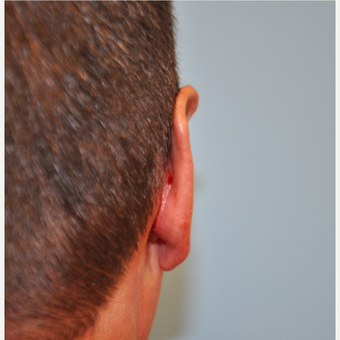 45-54 year old man treated with Ear Surgery