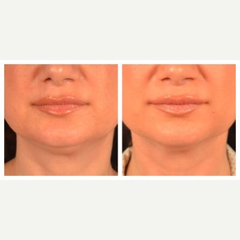 45-54 year old woman treated with Kybella before 2095843