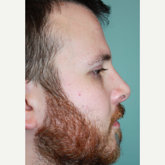25-34 year old man treated with Rhinoplasty after 3651114