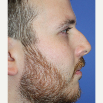 25-34 year old man treated with Rhinoplasty before 3651114