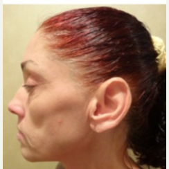 55-64 year old woman treated with Facelift before 3807323