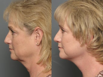Brow Lift, Facelift & Lower Eyelid Surgery 338628
