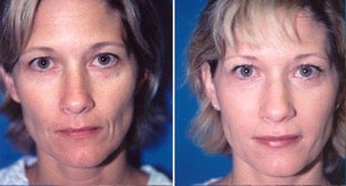 38-year-old woman treated with Facial Fat Transfer. before 3282135