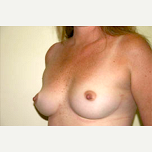 35-44 year old woman treated with Breast Augmentation before 3704634