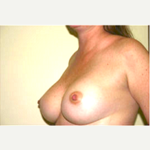 35-44 year old woman treated with Breast Augmentation after 3704634