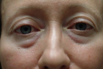 54 year old women who does not like her lower eyelid bags before 1324085
