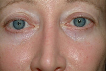 54 year old women who does not like her lower eyelid bags after 1324085