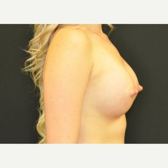 18-24 year old woman treated with Breast Augmentation 1719115