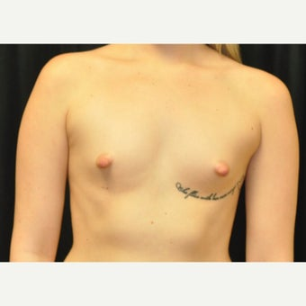 18-24 year old woman treated with Breast Augmentation before 1719115
