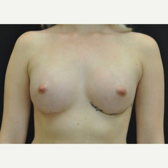 18-24 year old woman treated with Breast Augmentation after 1719115
