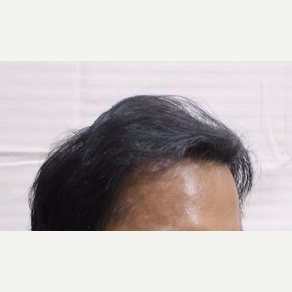 18-24 year old man treated with Hair Transplant after 3263659