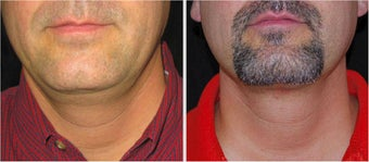 Before and After Laser Liposuction For Double Chin