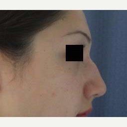 Rhinoplasty before 2993743