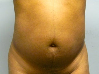 37 Year Old Female treated for abdominal contouring  1380237