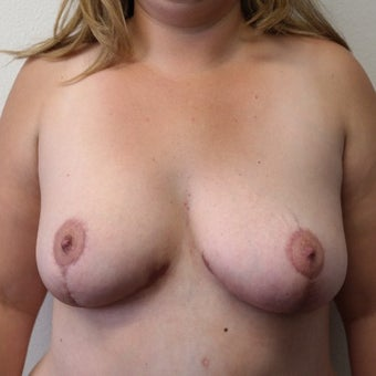 Severe Breast Asymmetry corrected w/Breast Lift, Breast Reduction, and Areola Reduction after 2124195