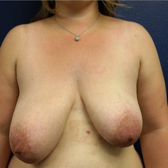 Severe Breast Asymmetry corrected w/Breast Lift, Breast Reduction, and Areola Reduction before 2124195