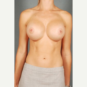 18-24 year old woman treated with Breast Implant Revision