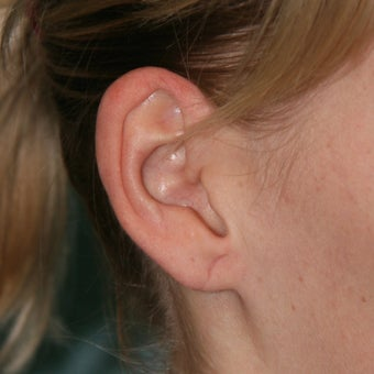 25-34 year old woman treated with Ear Lobe Surgery after 1683169
