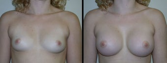 Breast Augmentation before 1232972