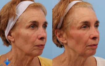 65-74 year old woman treated with Wrinkle Treatment before 3623753