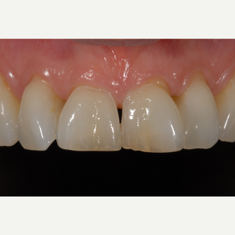 25-34 year old woman treated with Dental Crown before 3531727