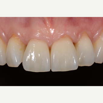25-34 year old woman treated with Dental Crown after 3531727