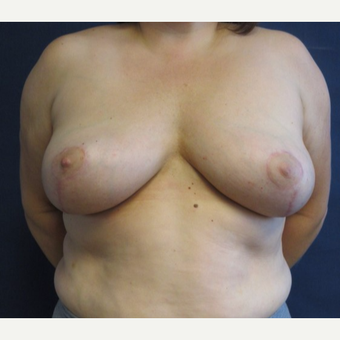 35-44 year old woman treated with Breast Lift after 3743066