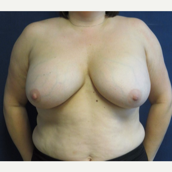 35-44 year old woman treated with Breast Lift before 3743066