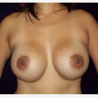 25-34 year old woman treated with Natrelle Silicone Breast Implants after 3143236