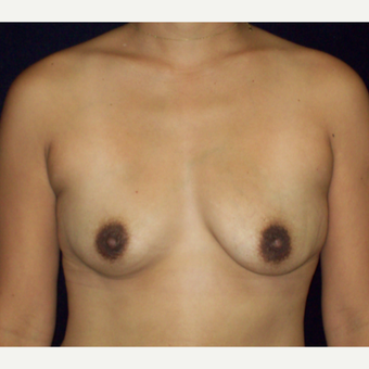 25-34 year old woman treated with Natrelle Silicone Breast Implants before 3143236