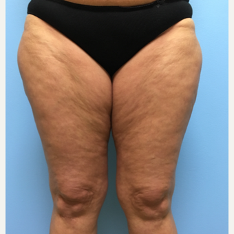 50 year-old woman treated with Liposuction of the outer thighs, inner thighs, and inner knees. before 3495028