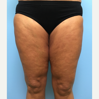 50 year-old woman treated with Liposuction of the outer thighs, inner thighs, and inner knees. after 3495028