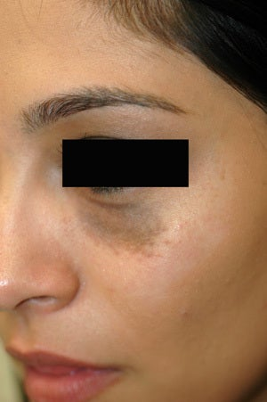 Birthmark Removal Nevus of Ota Before and After Photos