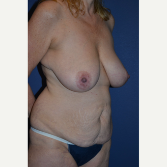 45-54 year old woman treated with Mommy Makeover before 3005676