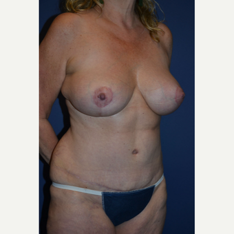 45-54 year old woman treated with Mommy Makeover after 3005676