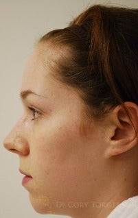 25-34 year old woman treated with Rhinoplasty before 3259271
